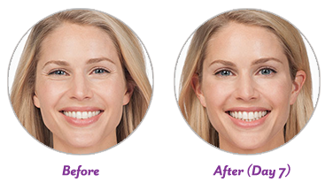 BOTOX® Cosmetic - $8 99 per unit - physician injected